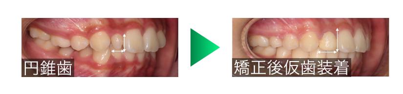 矮小歯の改善