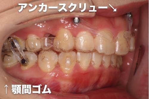 インビザライン・抜歯・アンカースクリュー