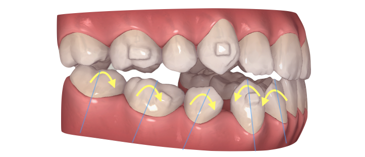 インビザライン・臼歯近心傾斜