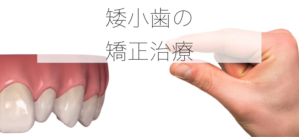 矮小歯の矯正治療