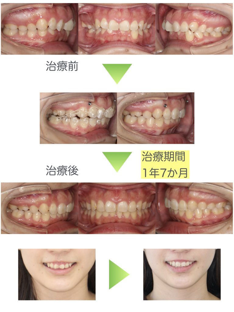 Deep bite, Gummy smile, Anchor screw, Extraction, Adult, Invisalign
