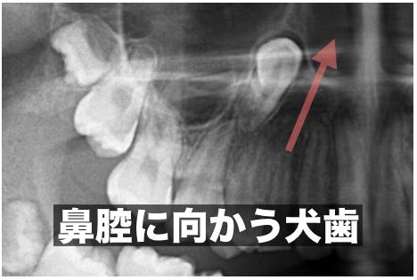 犬歯が鼻腔方向に上昇