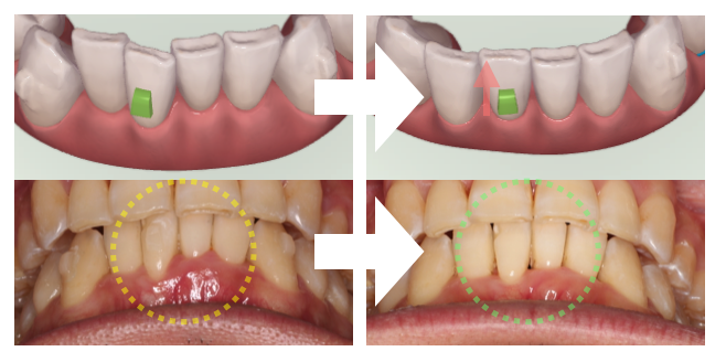 インビザライン・歯肉退縮改善