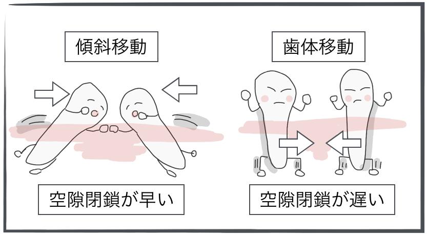 <傾斜移動と歯体移動による空隙閉鎖>