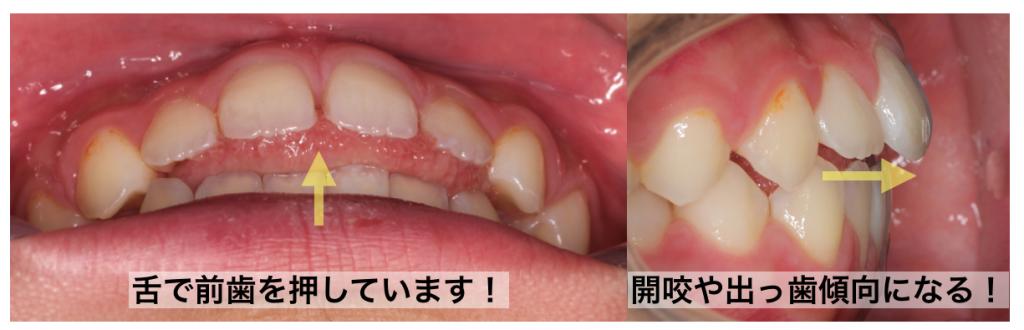 低位舌の歯列への影響