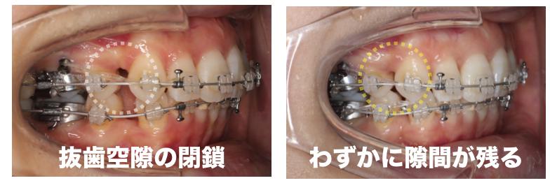 <小臼歯抜歯空隙の隙間>