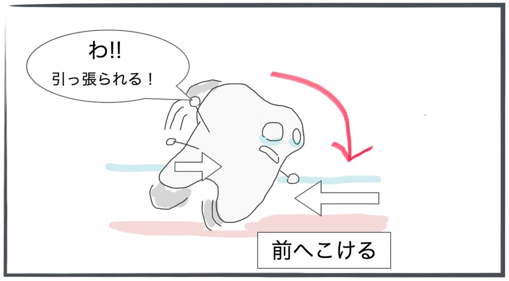 インビザライン・近心傾斜