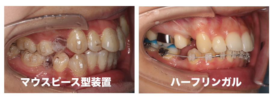抜歯後の矯正治療の様子