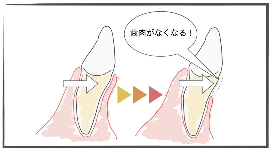 歯の移動による歯肉退縮する様子