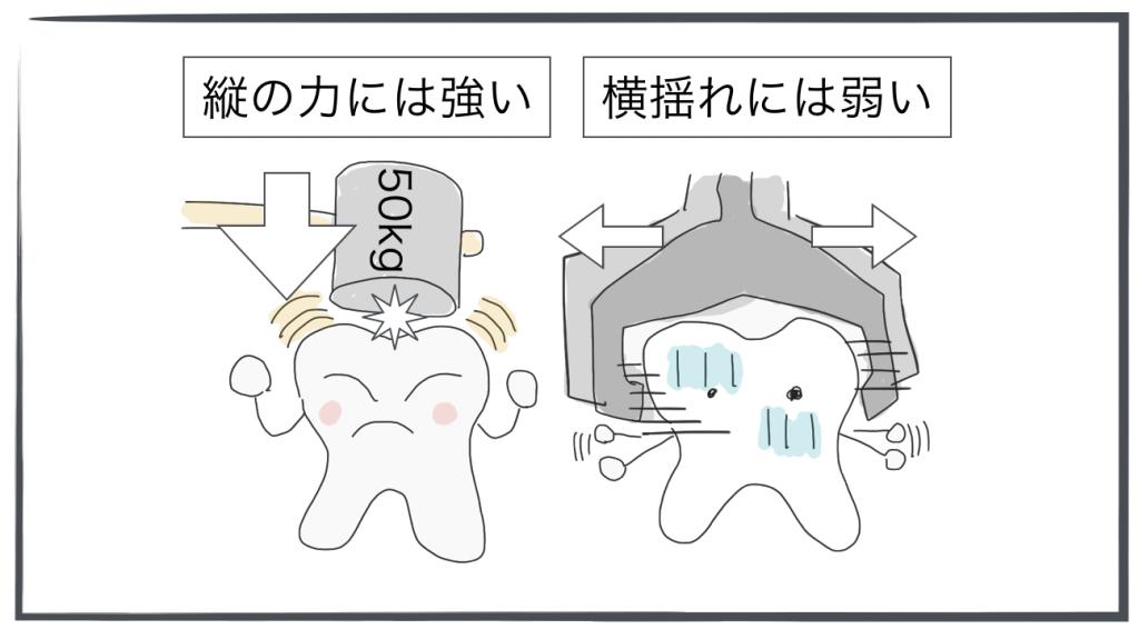 奥歯は横よれに弱い