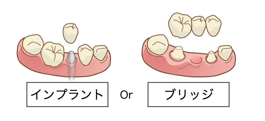 <先天性欠如部に歯を増やす方針>