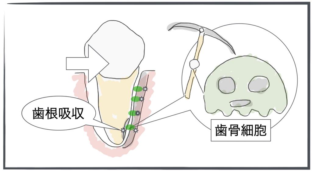 歯根吸収・メカニズム