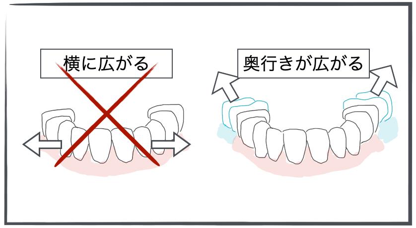 <奥行きが広がり、歯列が大きくなる>