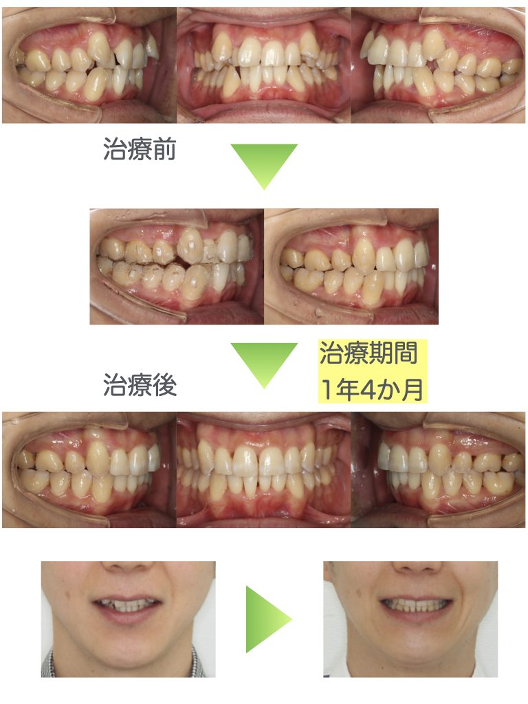 八重歯・インビザライン