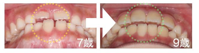 前歯のギザギザ