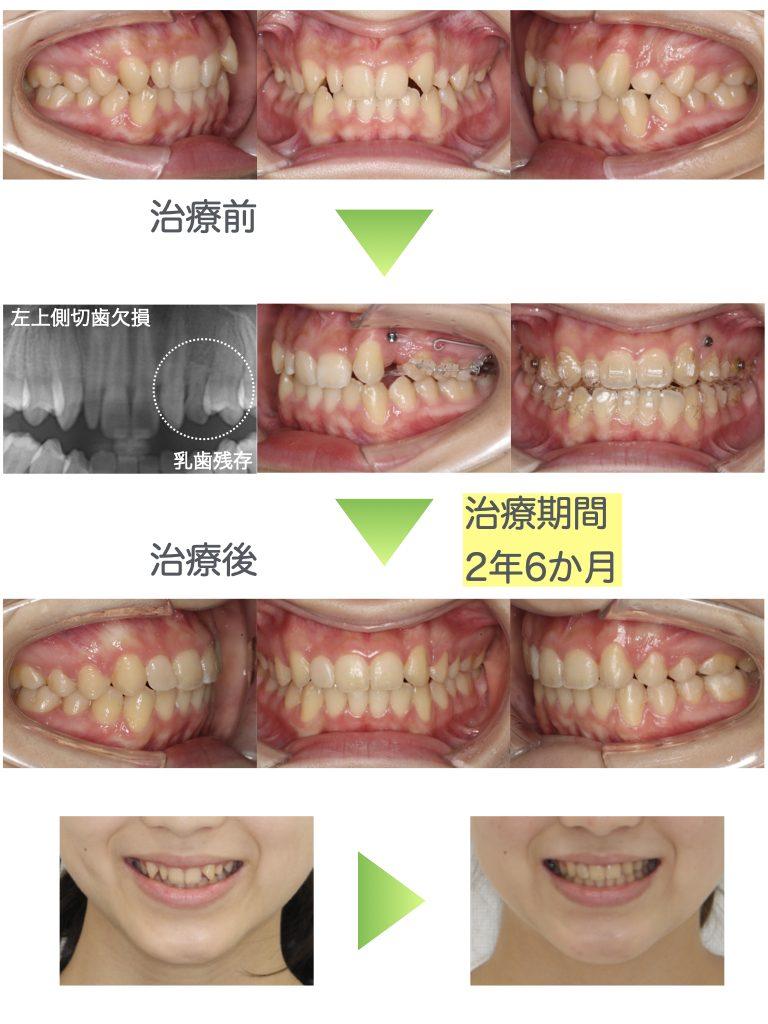 矮小歯・先天性欠如歯