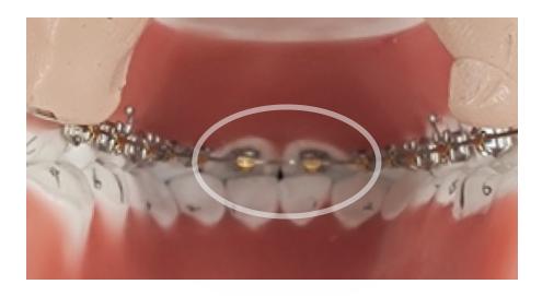 下の前歯が上のブラケット装置にぶつかる