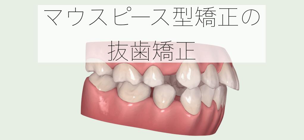 インビザライン 抜歯矯正