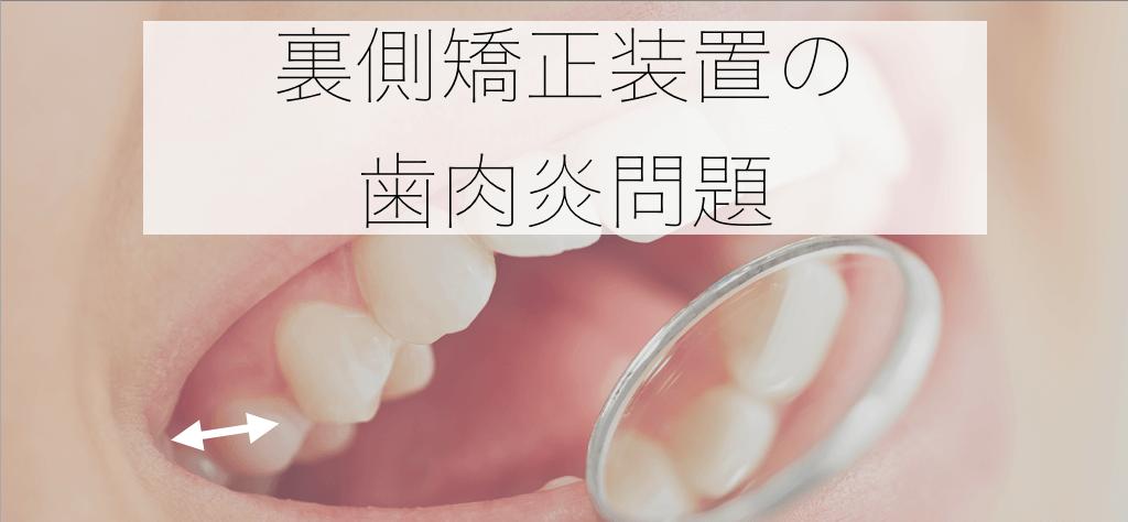 裏側矯正装置の歯肉炎問題
