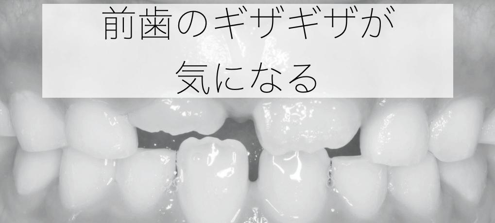 前歯のギザギザが気になる